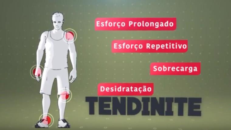 Vídeo: Veja como prevenir inflamações causadas pela má postura no Almanaque Saúde