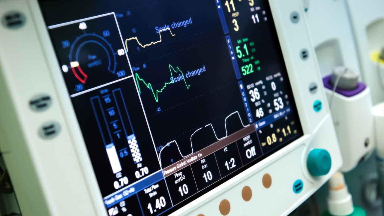SENAI e grandes indústrias se unem para fazer manutenção de respiradores mecânicos