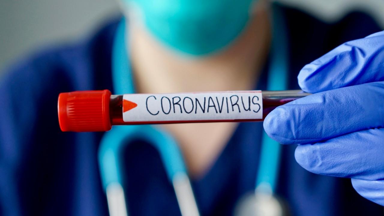 A indústria contra o coronavírus: vamos juntos superar essa crise