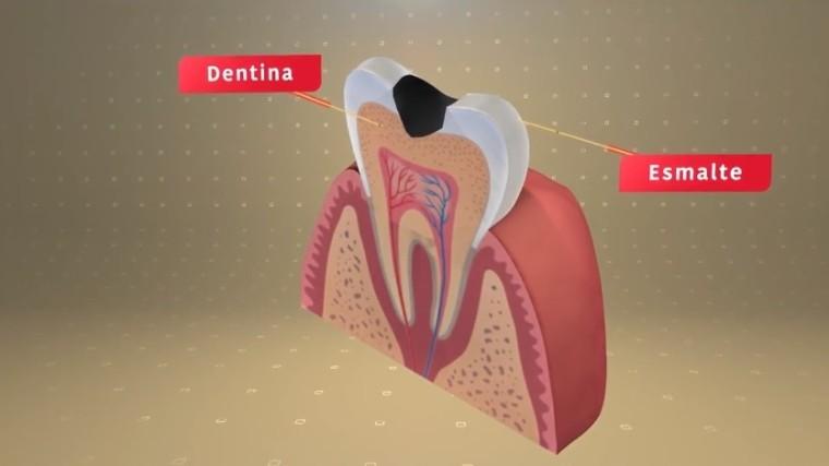 VÍDEO: Almanaque Saúde mostra a melhor forma de cuidar da saúde bucal e evitar cáries, gengivite e mau hálito